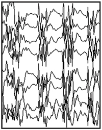 Normal EEG tracing.