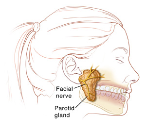 Side view of a female head showing the parotid gland and facial nerve next to the ear and over the jaw.