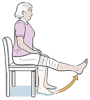 Woman sitting in chair doing sitting knee exercises. Bandage on knee.