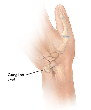 Back view of hand showing dotted line around ganglion cyst on wrist.
