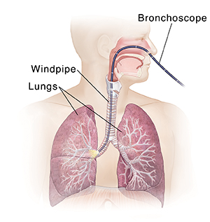 Front view of male head and torso showing respiratory system with bronchoscope inserted through nose, down trachea, and into right main bronchus.