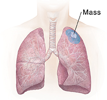 Front view of chest showing lungs. Shaded area shows wedge resection.