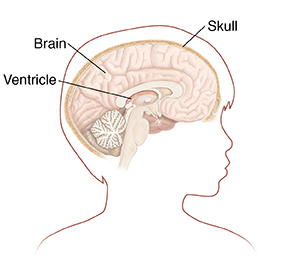 Outline of boy's head in profile showing brain in cross section.