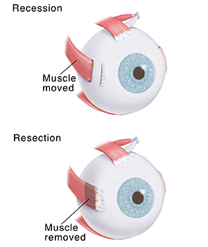 Eye showing muscle moved. Eye showing muscle cut.