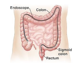 Outline of abdomen showing scope inserted through anus into entire colon.