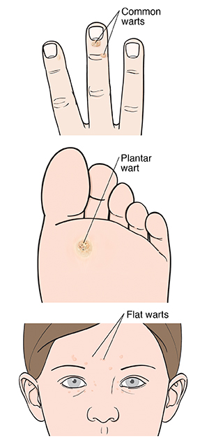 Common wart on end of finger. Plantar wart on sole of foot. Flat warts on woman's face.