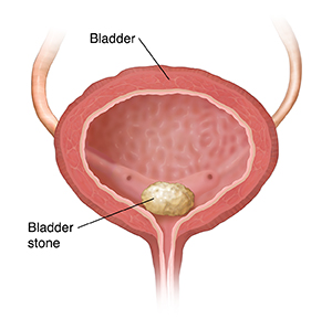 Cross section of bladder showing bladder stone.