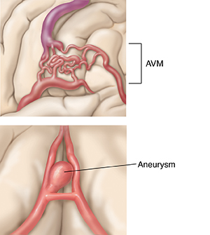 Closeup view of arteriovenous malformation (AVM) in the brain. Closeup view of aneurysm in the brain.