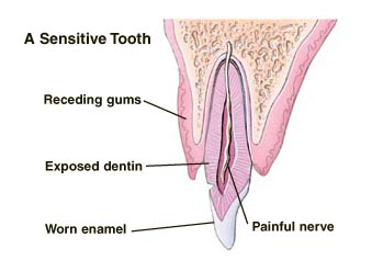 Cross section of tooth with receding gum, exposed dentin, and sensitive nerve.