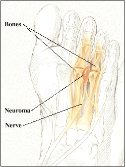 Sole of foot showing bones, nerves, and a neuroma between two bones.