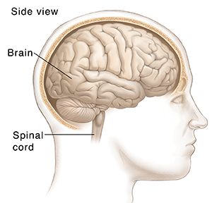 an analysis of the causes and symptoms of brain and spinal cord tumors Vertebral motion analysis spine tumors overview | causes | symptoms | diagnosis tumors that originate in the brain or spinal cord are called primary tumors.